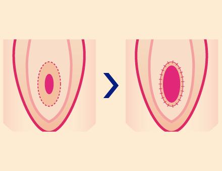 処女膜切開術