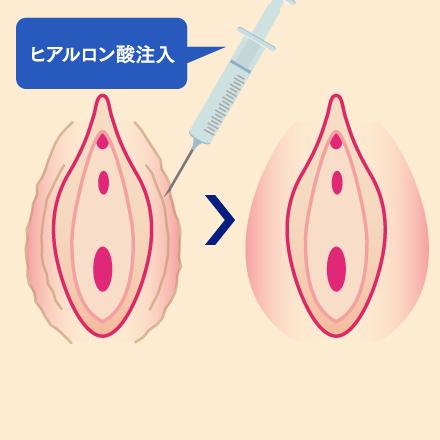大陰唇増大術(ヒアルロン酸注入)とは