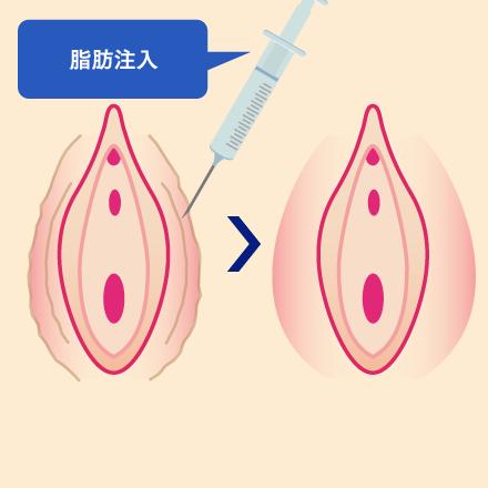 大陰唇増大術(脂肪注入)