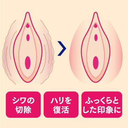 大陰唇縮小術とは