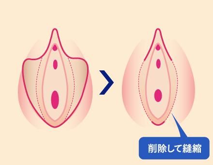 小陰唇縮小術とは
