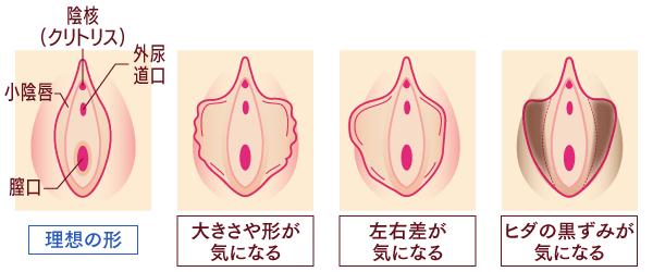 「小陰唇」のお悩み