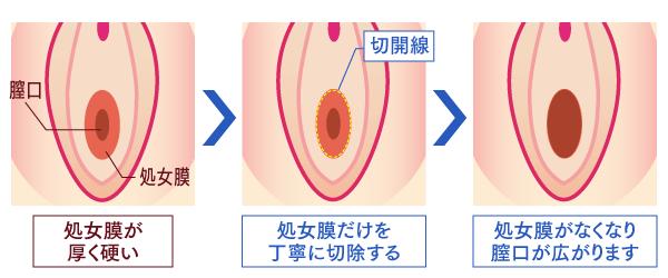 処女膜強靭症の治療について